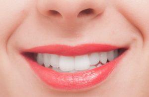 ホワイトニングで白い歯
