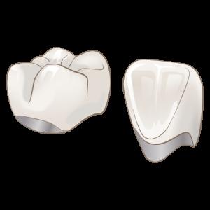 真っ白な歯にしたければ被せるのが一番です