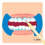 ホワイトニングは歯ぐきをガードして安全に行います