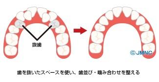 成人の抜歯矯正のイメージ