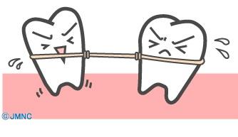 矯正は歯と歯の綱引き