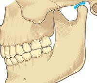 顎関節は15歳前後で完成