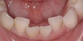 乳歯のガタガタ叢生