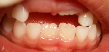 前歯の生え変わり