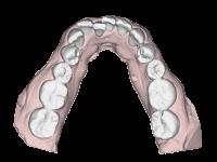 前歯のガタガタ(叢生)