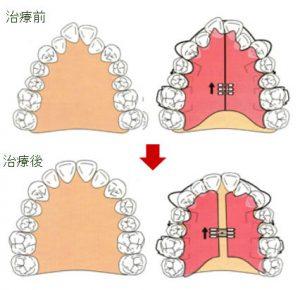 床矯正顎を広げる