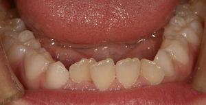 7~8歳の前歯のガタガタ叢生