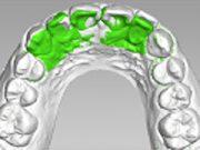 コンピューター上で歯の動きをシュミレーション