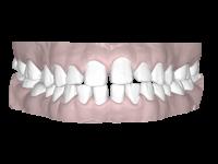 隙間のある歯並び(空隙歯列)
