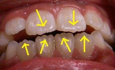 噛んでないと消えない前歯のギザギザ