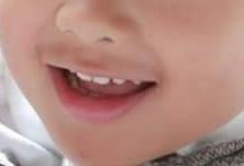 4歳児の唇