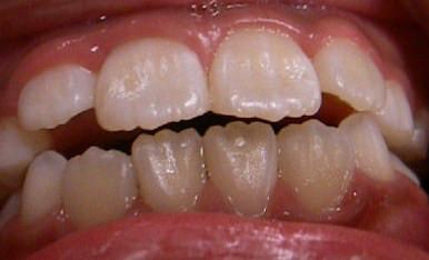 ギザギザの前歯