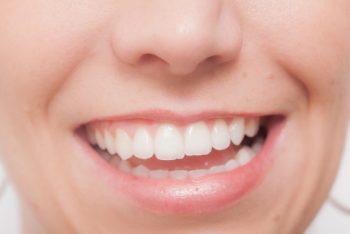 前歯4本のみのプチ矯正