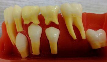 乳歯の生え変わりの骨の中