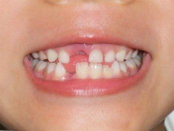 抜き 方 乳歯