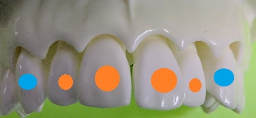 前歯の部分矯正で動かしたい歯