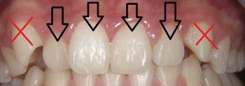 対象となる歯は前歯4本