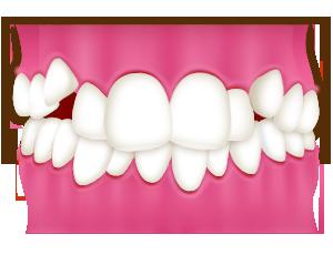 歯列の外に出た犬歯